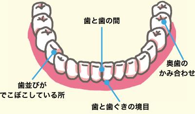 お子さまの歯をみがくときのポイント